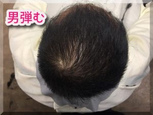 育毛の成功画像