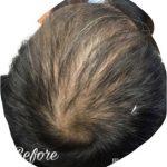 頭頂部の育毛成果・体験談