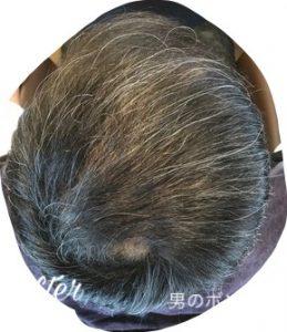 頭頂部の育毛成果・半年間で髪が増えた
