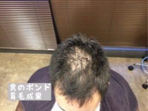 頭頂部の育毛成果