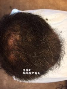 髪を増やした成果 発毛効果と薄毛改善の効果