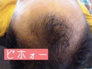 AGAを頭皮ケアで髪が太くなった