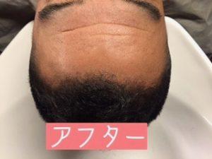 AGAを頭皮ケアで治す