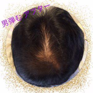 育毛成果・育毛剤で髪が増えた方