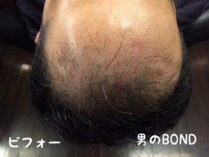 40代男性のオデコの育毛効果