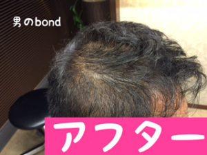 育毛サロンの増毛ビフォーアフター、フィンペシアも使用している