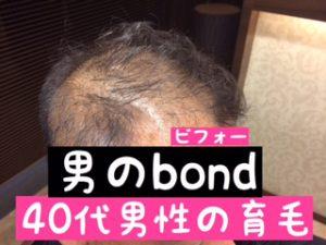 育毛サロンの増毛ビフォーアフター
