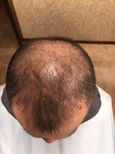 1年ほどで髪が増えた人のビフォー