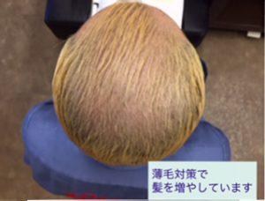 薄毛対策での育毛剤の効果
