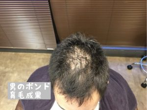 頭頂部の育毛効果