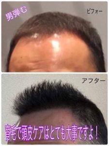 育毛剤で髪が増えた