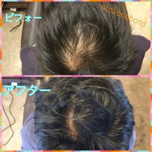 30代の育毛成果・フィンペシアと育毛シャンプーを使用
