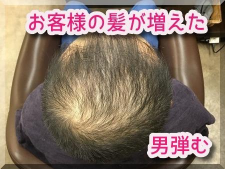 お客様の育毛方法