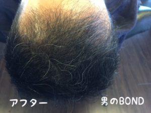 40代男性で頭皮ケアとフィンペシアの効果