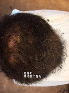 頭頂部の薄毛の効果
