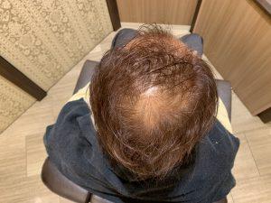 育毛効果 髪が増えている