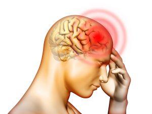 バイスマ の頭痛を軽減する方法