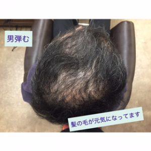 理容師が編み出した育毛方法がすごい!