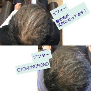 高松市で髪を元気にする、育毛・薄毛対策サロンです