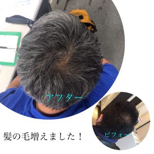 お客様の頭皮ケアの効果!!!高松市の育毛効果!