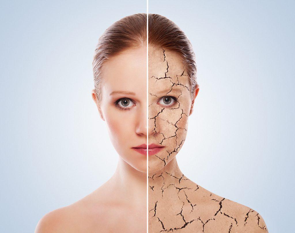 コラーゲンでシワ対策・老化予防